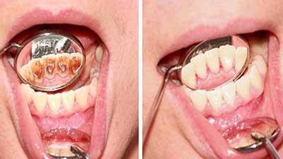 docteur marc chouraki chirurgien dentiste a paris 8 implantologie implantologue 8eme arrondissement detartrage dentaire