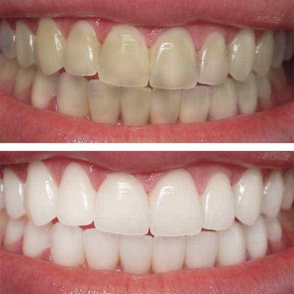 docteur marc chouraki chirurgien dentiste a paris 8 implantologie implantologue 8eme arrondissement eclaircissement dents avant apres