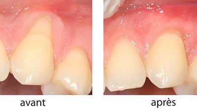 docteur marc chouraki chirurgien dentiste a paris 8 implantologie implantologue 8eme arrondissement greffe gingivale avant apres
