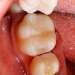 docteur marc chouraki chirurgien dentiste a paris 8 implantologie implantologue 8eme arrondissement inlays composites