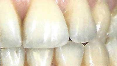 docteur marc chouraki chirurgien dentiste a paris 8 implantologie implantologue 8eme arrondissement recouvrement des racines denudees grace a la chirurgie 1