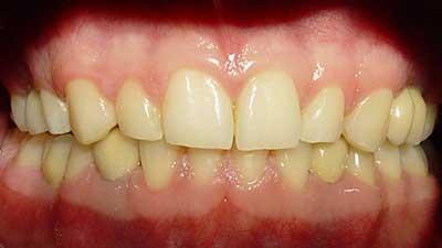 docteur marc chouraki chirurgien dentiste a paris 8 implantologie implantologue 8eme arrondissement surfacage dentaire