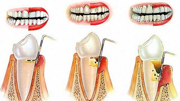 docteur marc chouraki chirurgien dentiste a paris 8 implantologie parodontologie chirurgie d assainissement