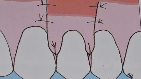 docteur marc chouraki chirurgien dentiste a paris 8 implantologie parodontologie chirurgie parodontie apres