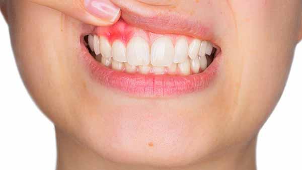 docteur marc chouraki chirurgien dentiste a paris 8 implantologie parodontologie gingivite 2