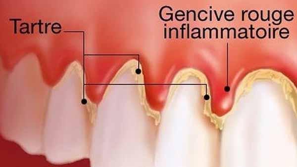 docteur marc chouraki chirurgien dentiste a paris 8 implantologie parodontologie gingivite parodontologie