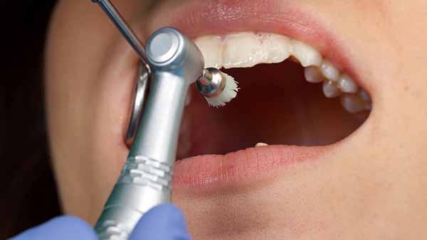 docteur marc chouraki chirurgien dentiste a paris 8 implantologie parodontologie tartre polissage