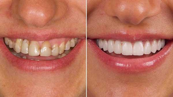 docteur marc chouraki chirurgien dentiste paris 8 chirurgie couronne ceramo ceramique 1