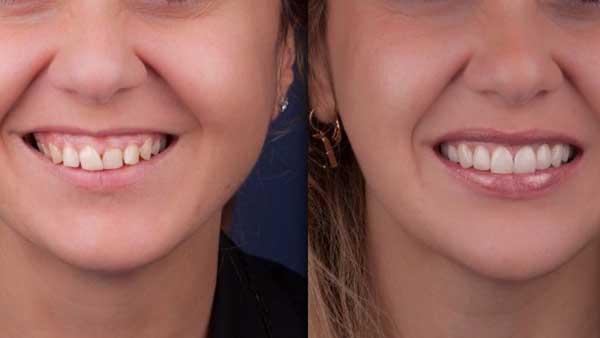 docteur marc chouraki chirurgien dentiste paris 8 chirurgie couronne ceramo ceramique 2