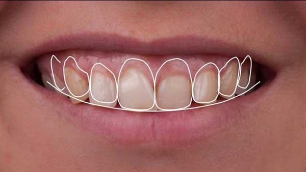 docteur marc chouraki chirurgien dentiste paris 8 chirurgie couronne ceramo ceramique 4