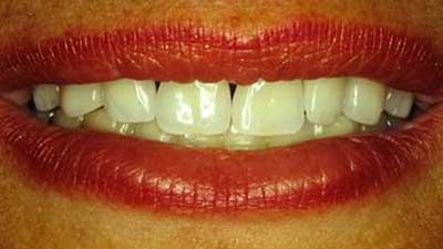 docteur marc chouraki chirurgien dentiste paris 8 chirurgie esthetique des dents