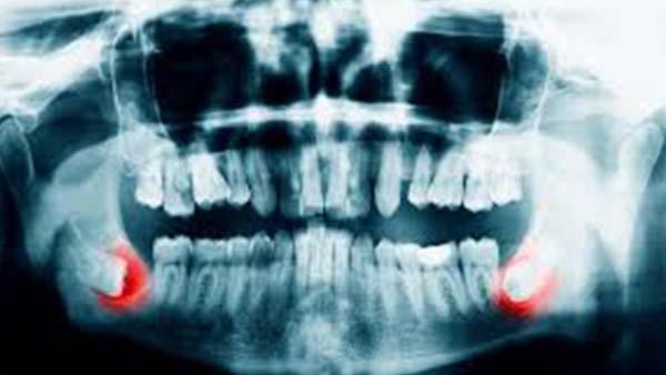 docteur marc chouraki chirurgien dentiste paris 8 implantologie parodontologie dent de sagesse